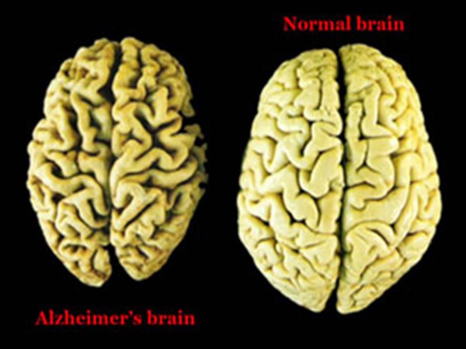 Alzheimer's Brain Vs Normal Brain