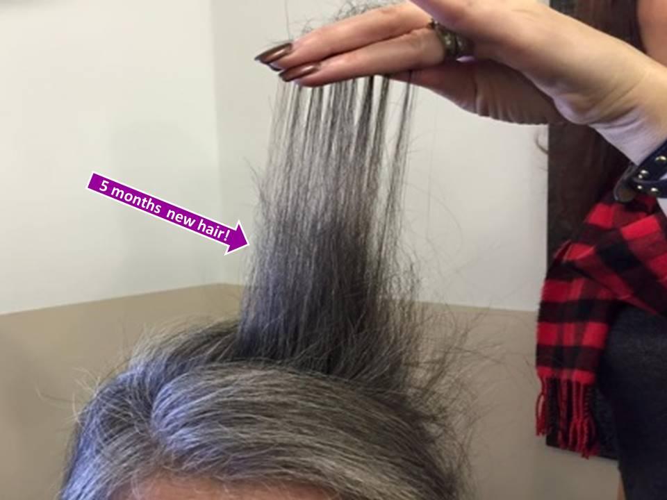 Hair Growth System