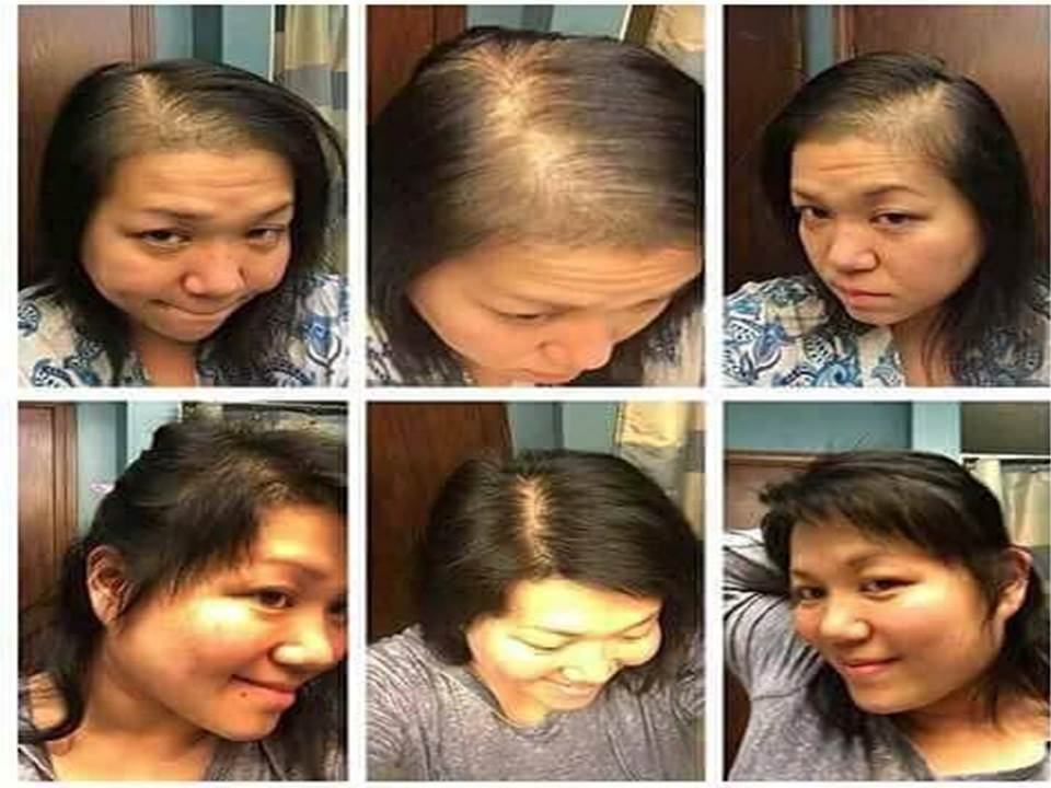 Balding Asian Hair