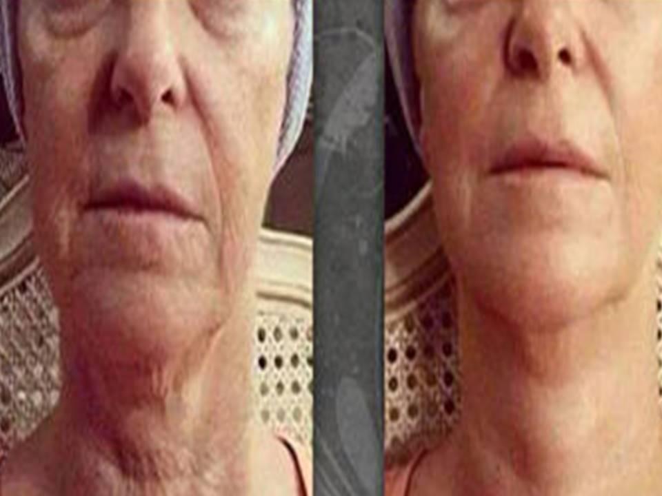 Facial tightening