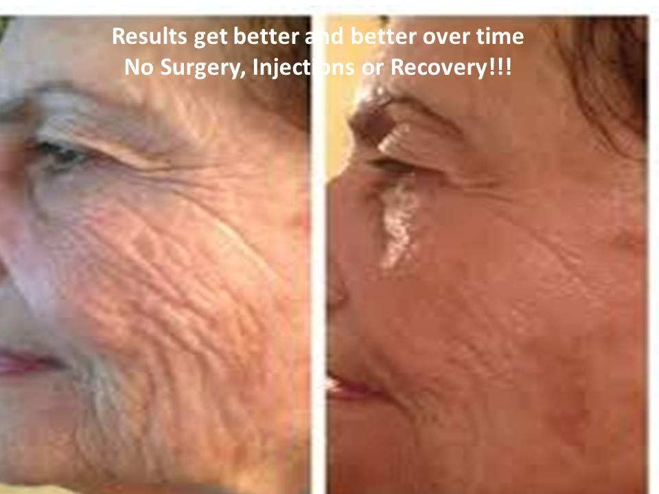 Fading deep wrinkles