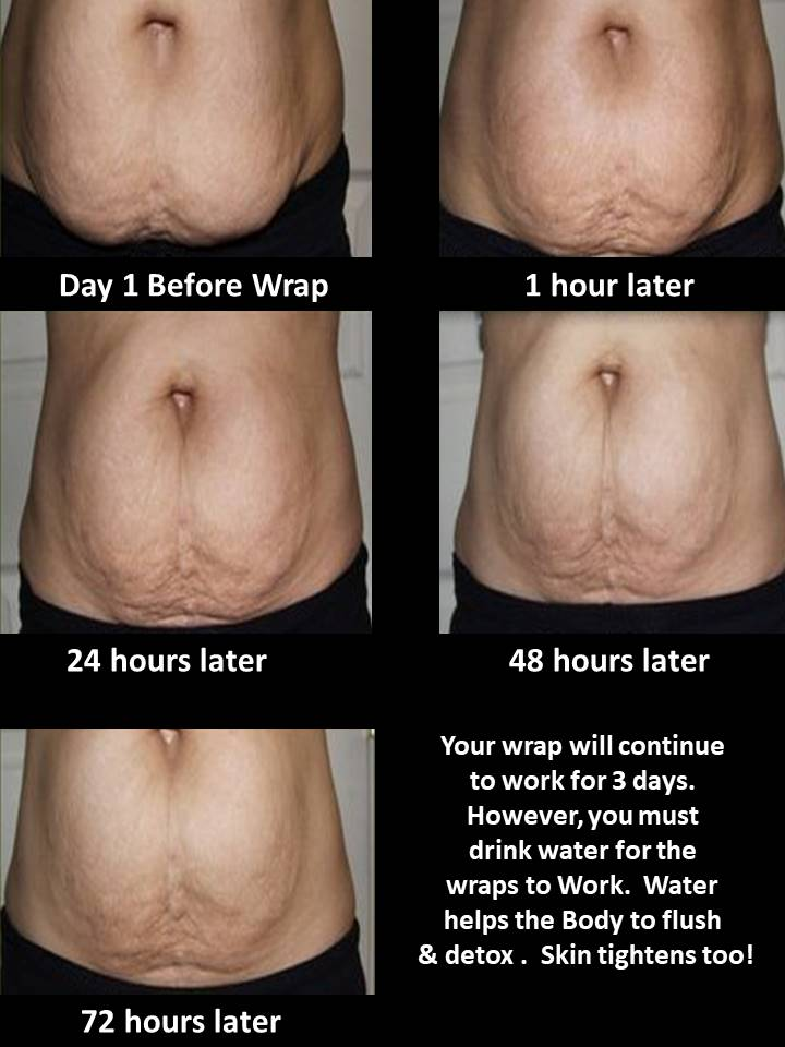 Plano Body Wrap on Tummy