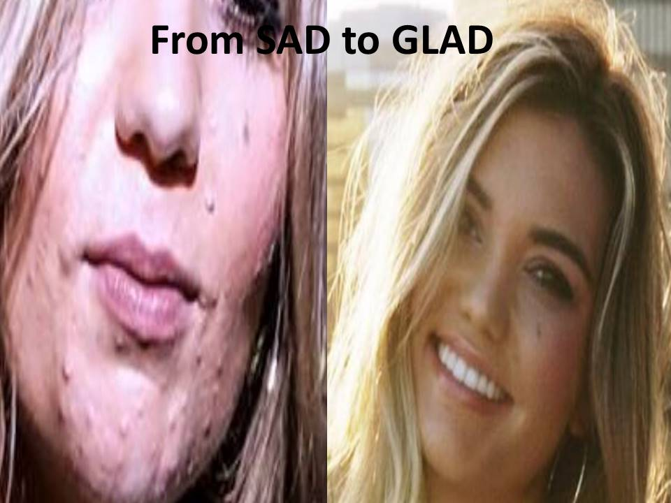 Hannah Sad to Glad