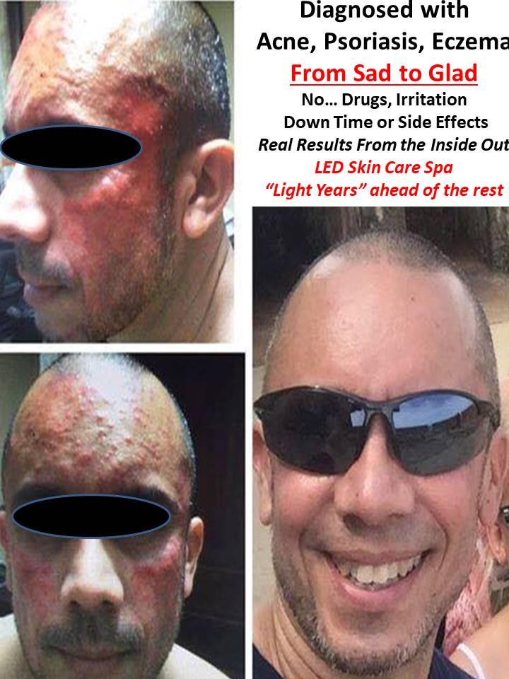 Acne Psoriasis Eczema