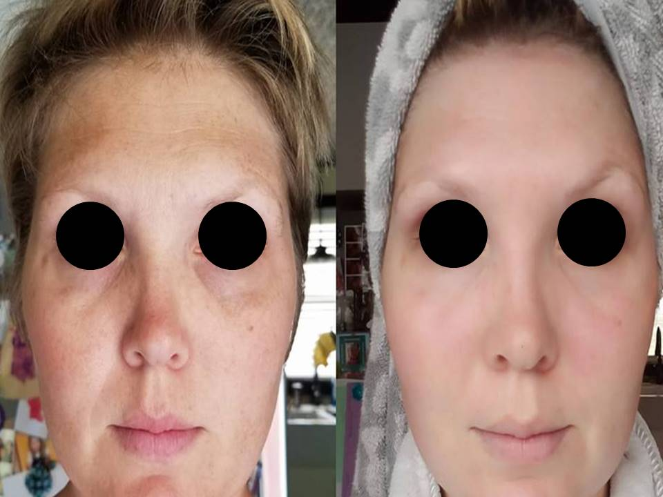 LED Skin Care Spa Results