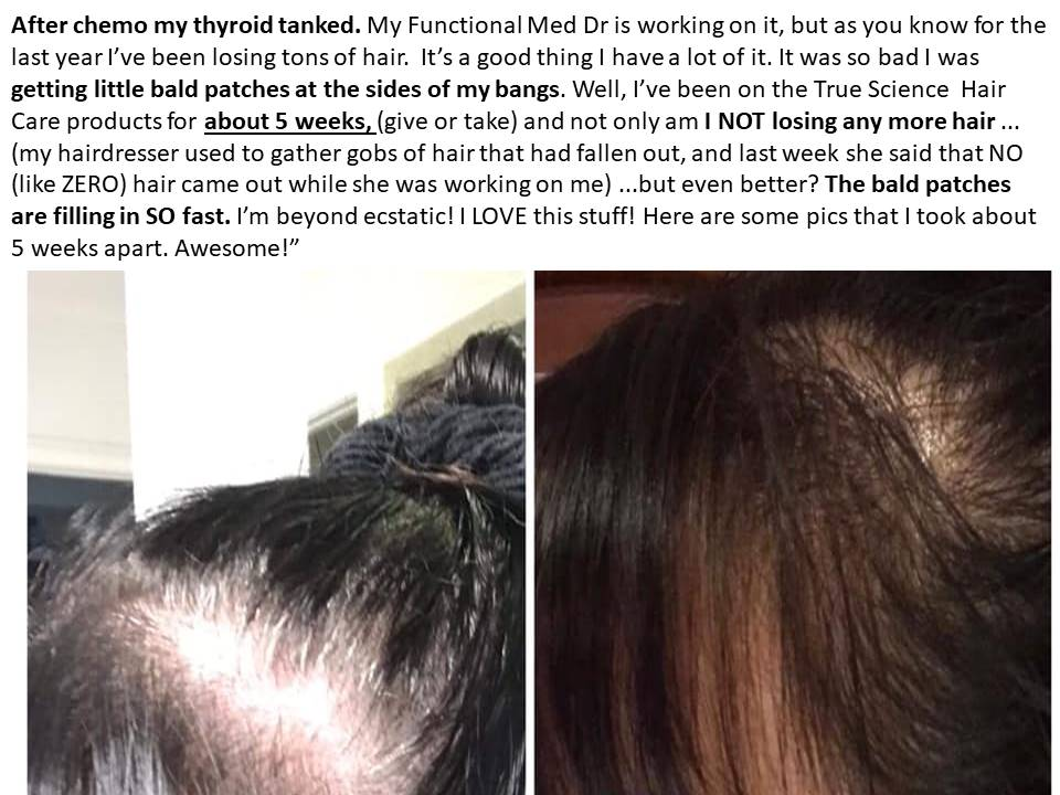 Hair Thyroid and Chemo