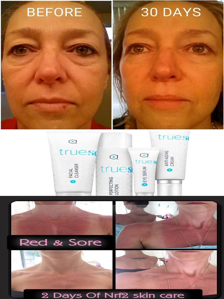 Skin true sciene 30 days and sunburn