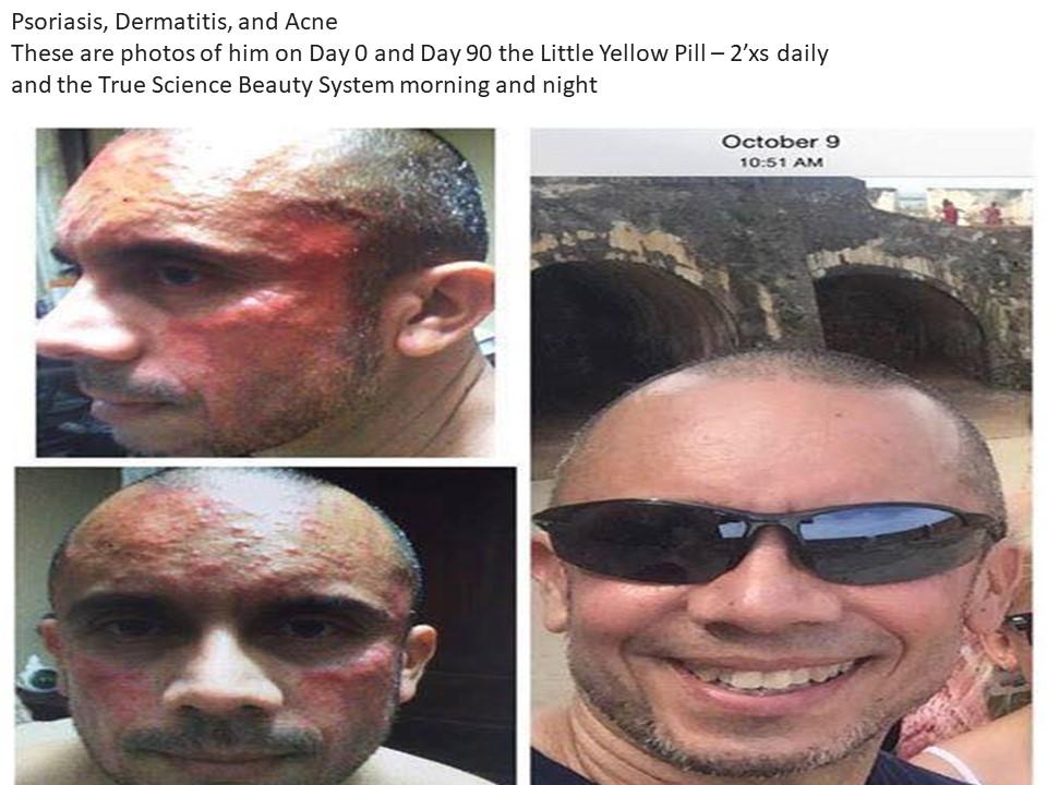Acne psoriasis dermatitis