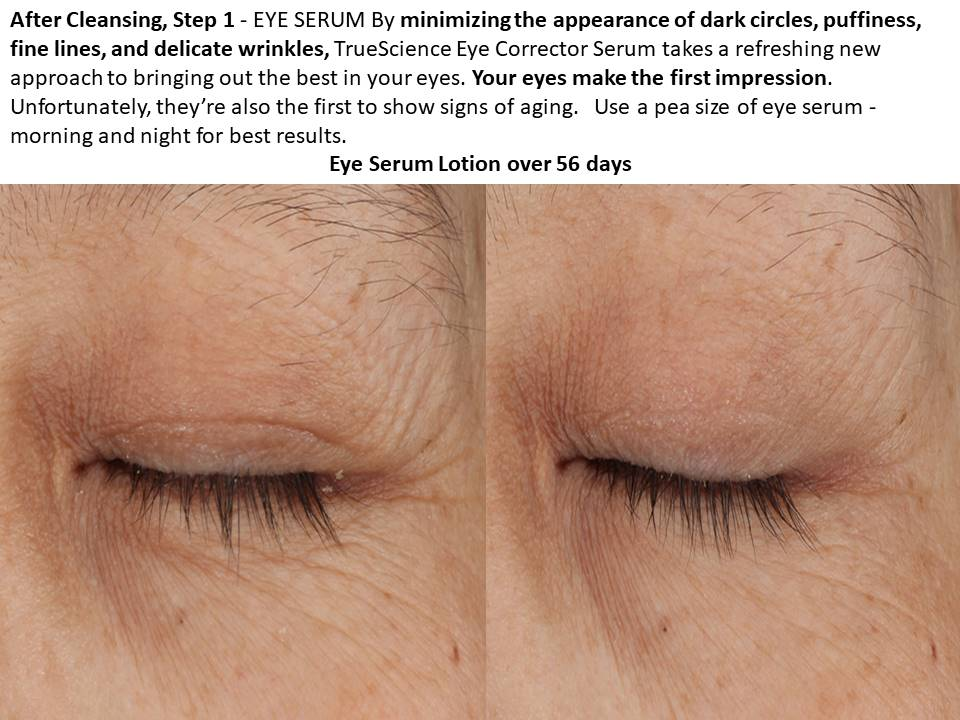 TS Skin Step 1 Eye Serum