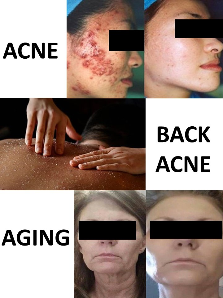 Acne Back Acne Aging