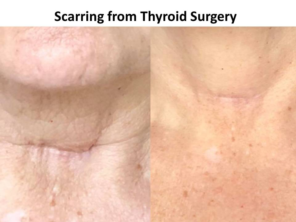 Scarring - thyroid Surgery