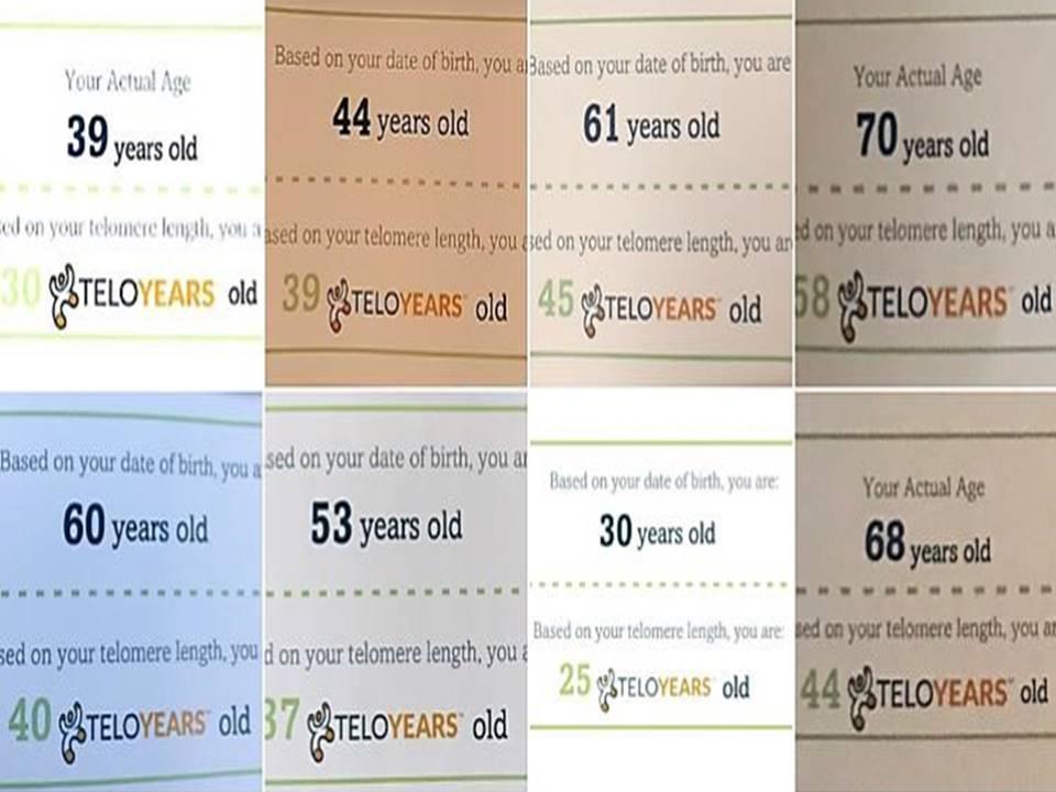 Telomeres by Telo Years